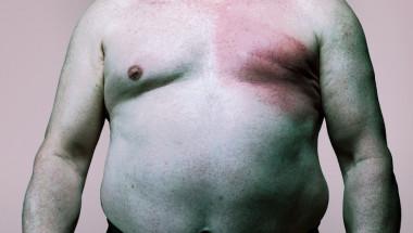 Д-р Росица Кръстева: Лекувам шестима мъже с рак на гърдата