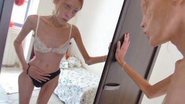 Анорексията е най-жестокият начин за самоубийство