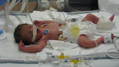 Проф. д-р Боряна Слънчева: Разчитаме на д-р Москов, и той имаше недоносено дете!