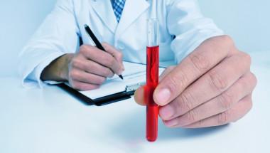 40% от заразените със СПИН у нас се откриват рано!