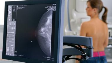 Тон Янсен: Противозачатъчните са главната причина за рака на гърдата!