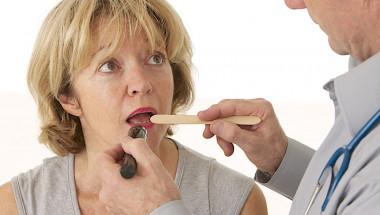 Симптом на каква болест е набъбналият език?