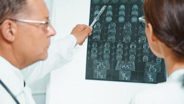 Каква е разликата между микроинсулт и инсулт?