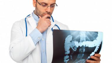 Д-р Атанас Матев: Ракът на дебелото черво е лечим, ако е хванат в първи стадий!