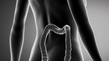 Д-р Атанас Матев: Кървящите вътрешни хемороиди причиняват анемия