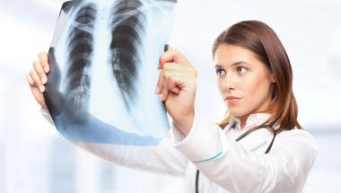 Пневмонията не може да провокира белодробен рак