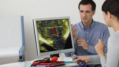 Ракът на пикочния мехур се лекува, ако е открит навреме!
