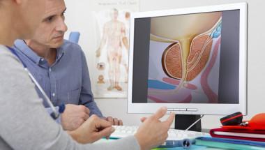 След операция на простатата могат да настъпят усложнения