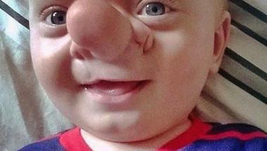 Истинският Буратино пребори мъчителна болест с усмивка (СНИМКИ)