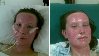 Желязна воля: Това момиче бе обезобразено в страшна авария, но сега е истинска красавица (СНИМКИ)
