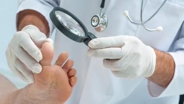 Врастването на ноктите води до възпаление на пръстите