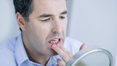 5 причини да се тревожите заради кръв от венците