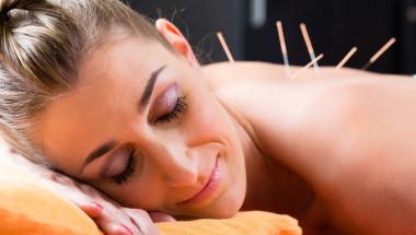 Иглотерапията увеличава шанса за зачатие при ин витро