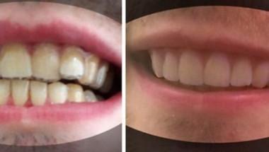 Студент сам си оправи кривите зъби и спести хиляди долари от брекети (СНИМКИ)