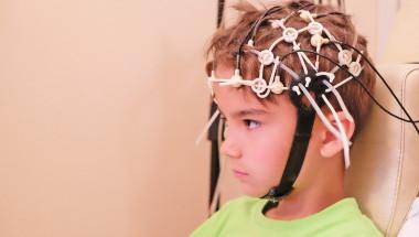 Д-р Пламен Димитров: Слаб ток активира мозъка на хора с аутизъм