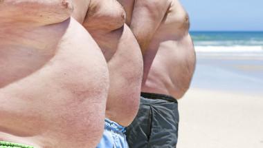 Половината от хората ще са със затлъстяване до 2030 г.