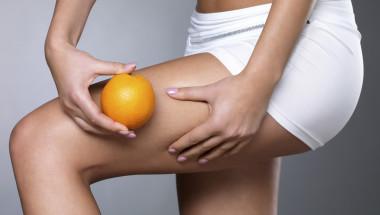 Целулитът  не е болест, а нормално състояние на мастната тъкан