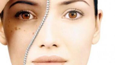 5 натурални съставки премахват тъмните петна по кожата