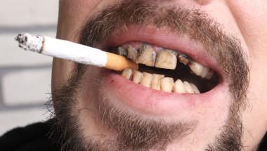 Д-р Георги Хараланов: Болните зъби могат да доведат до рак на устата