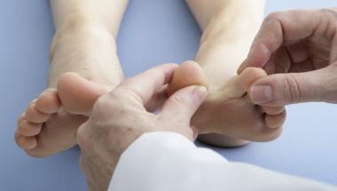 Д-р Теодора Йорданова: Локалното третиране само забавя лечението на гъбичките