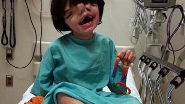 """Детето с """"двойното лице"""", което лекарите искаха да убият, навърши 13 години"""
