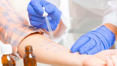 Алергията е фобия на имунната система