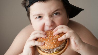 Доц. д-р Светослав Ханджиев: Детето с наднормено тегло става болен възрастен