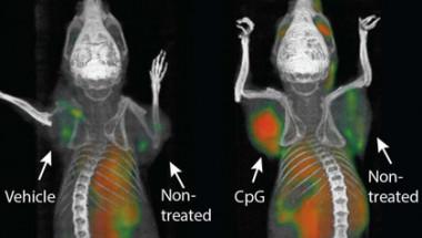 Учени от Станфорд обявиха, че са успели да преборят неизлечим метастазен рак!