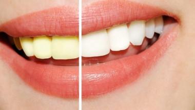 Зъболекарите са удивени! Тази рецепта избелва зъбите по-добре от тях