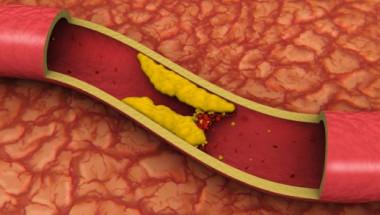 Шокиращата истина за холестерола и статините