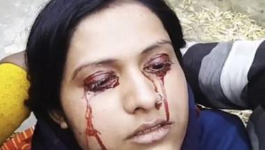 Изплашен индиец заряза младата си жена и я обяви за вещица, след като кървави сълзи започнаха да се стичат от очите й (СНИМКИ)