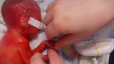 Дете чудо! Никой не вярваше, че това бебе ще оцелее, но това, което го сполетя смая всички (СНИМКИ)