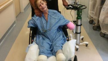 Ампутираха крайниците на жена заради лекарство, което отслаби имунитета ѝ
