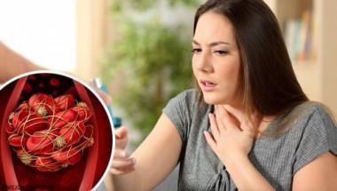 Кръвосъсиреците са много опасни: внимавайте за тези 8 симптома