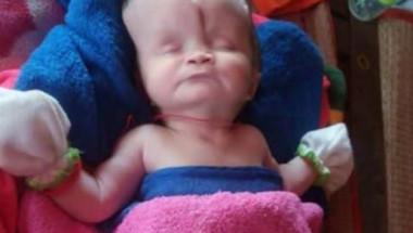 Лекарите са изумени как това бебе с половин череп все още е живо (СНИМКИ)