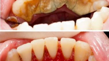 Магическа рецепта: Зъбният камък веднага ще изчезне