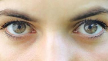 Бърз тест: Имате ли проблем с холестерола, само погледнете очите си