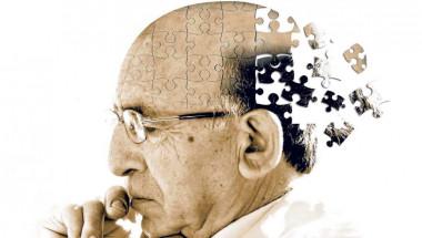 Учени разказаха как най-лесно се диагностицира Алцхаймер