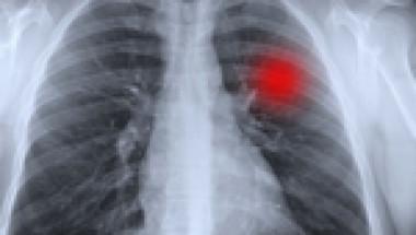 Британски учени създадоха противораково лекарство