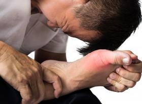Как да облекчим болката при подагра?