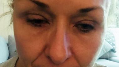 Ужасяващи СНИМКИ 18+! Майка едва не загуби зрението си след като 25 години не беше сваляла грима си