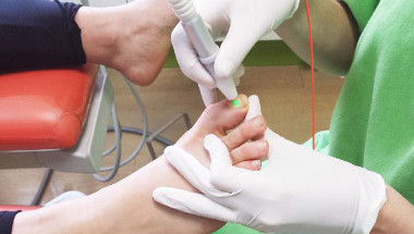 Лазерна терапия за гъбички по ноктите