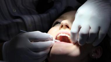 Рак на зъбите: Какво е това и можем ли да се справим с него?