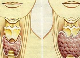 Този вълшебен лек ще излекува щитовидната ви жлеза само за 2 месеца