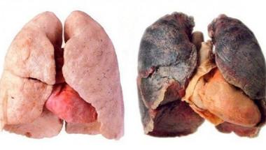 Как да почистите белите дробове след пушене: 4 начина, по които ще премахнете токсините от тялото!