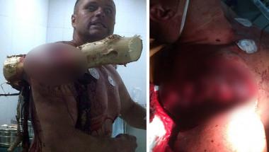 Хирурзите онемяха: Чудят се как този човек още е жив (СНИМКИ/ВИДЕО 18+)