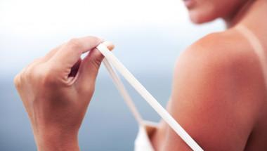 US-дерматолог посочи най-доброто средство за слънчево изгаряне - намира се в хладилника ви