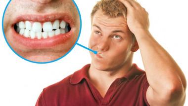 Защо скърцането със зъби е опасно и 7 идеи как да го спрете