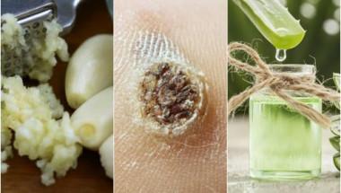 Имате брадавици? Тези 3 природни рецепти ще ви помогнат да се отървете от тях!