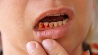 Сбогувайте се с кървящите венци